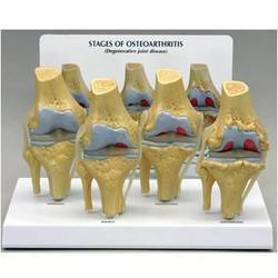 4-stage Arthritic Knee Model