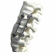 Unilock System for Spine