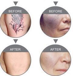 Tattoo & Birthmarks Removal