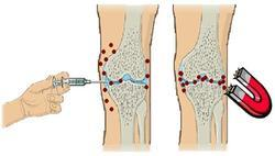 Treatment Of Osteo Arthritic