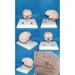 Brain Epilepsy Model
