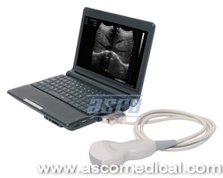 Laptop Ultrasound Scanner US1122
