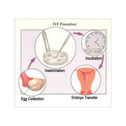 IVF - In Vitro Fertilization