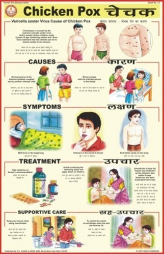 Chicken Pox Symptoms And Treatment In Adults Setiopolisoffice