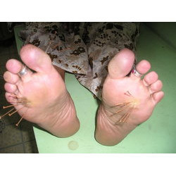Acupuncture Treatment for Corn Foot