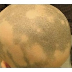 Hair Patches for Man Women and Child