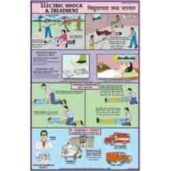 Electric Shock Treatment Charts