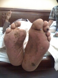 Non Healing foot ulcer after treatment by Dr. Ashok Damir
