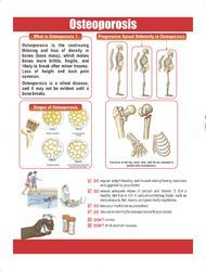 Osteoporosis POP UP Poster