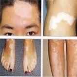 Leucoderma Treatment Services