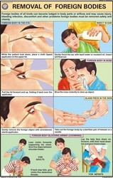 Removal Of Foreign Bodies From Eye, Ear, Nose Chart