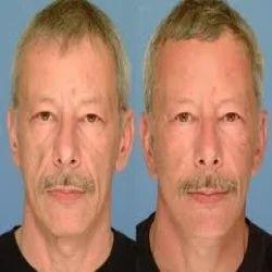 Facial Implants क स म ट क सर जर सर व स In R S