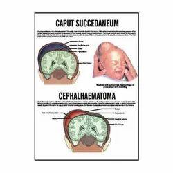 INC14 - Caput Succedaneum, Cephalhaematoma Charts