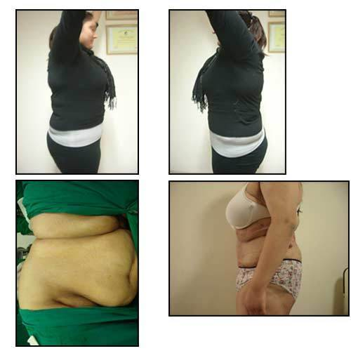 Mega liposuction cost