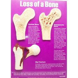 Loss Of A Bone & Hip Fracture Chart