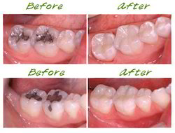 Fillings (Restorations)