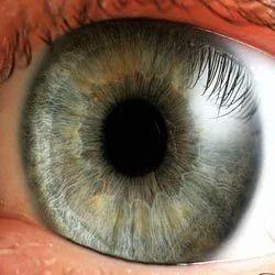 Diseases Of Eyes Progressive Myopia