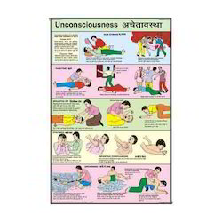 Unconsciousness Charts