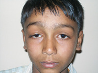 Occuloplasty Eye Treatment