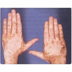 Leucoderma Homeopathy Treatment in Deoria, Prakash