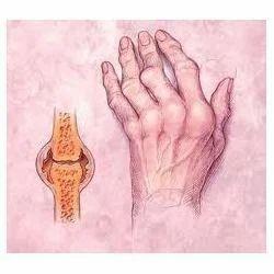 городской полиоксидоний хронический энтеровирусный реактивный артрит упругой жопой