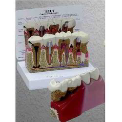 Teeth Model With Description Plate ( BEP-305-4 )