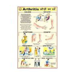 Arthritis Charts