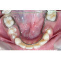 Tooth Loss & Space Maintainers