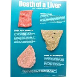 Liver Disease Anatomical 3D Therapy Desktop Board