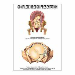 INC06 - Complete Breech Presentation Charts