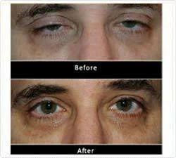 Ectropion Treatment Services