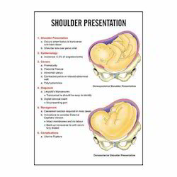 INC09- Shoulder Presentation Charts