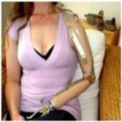 Above Elbow Prosthetic System