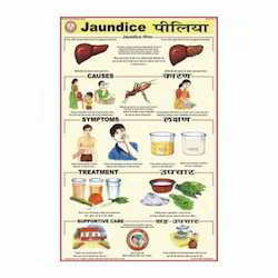 Jaundice Charts
