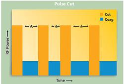 Smart Pulse Cut