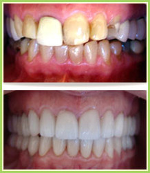 Smile Correction And Full Mouth Correction