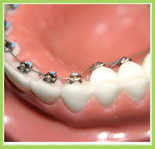 Dental Bracket at Best Price in India