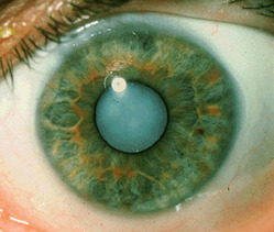 All Type Of Cataract Surgeries (with Best Quality IOL Implant)