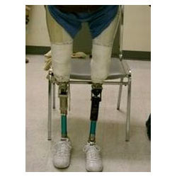 Above Knee Prosthesis