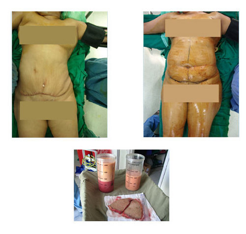 Liposuction (Abdomen/Arms/Thighs) & Abdominoplasty in Drive