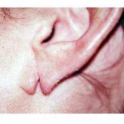 Ear Lobe Repair & Ear Piercing