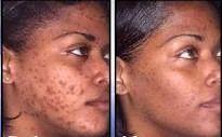 Acne Dermatologist