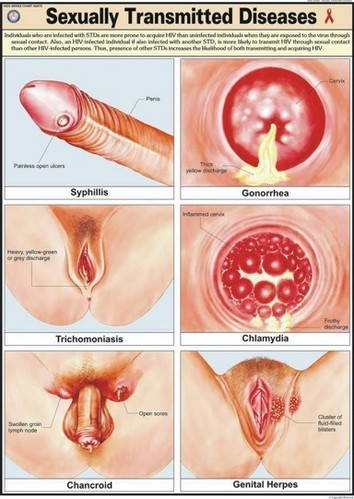 Pictures Of Sexually Transmitted Diseases
