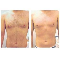 Laser for Hair Removal