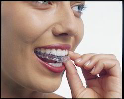 Clear Path Dental Aligners