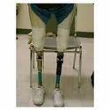 Above Knee Artificial Limbs