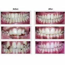 Steps to Dental Veneers