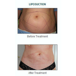 Liposculpture and Liposuction Services