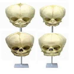 Fetal Child Skull Model ( BEP-121 )