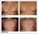 Male Breast Surgery (gynaecomastia)